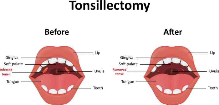 Tonsillectomy
